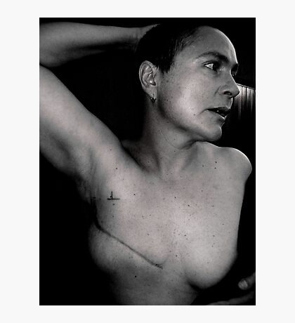 breast cancer - stage 3. Photographic Print