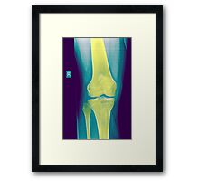 Knee x-ray front view Framed Print