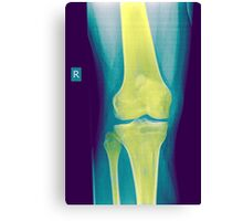 Knee x-ray front view Canvas Print