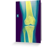 Knee x-ray front view Greeting Card