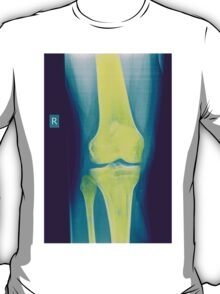 Knee x-ray front view T-Shirt
