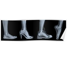 X-ray of a woman's foot in 4 different shoes Poster
