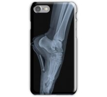 x-ray of a ballet dancer standing on pointe  iPhone Case/Skin
