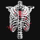 Broken Heart In Cage by loveatgunpoint