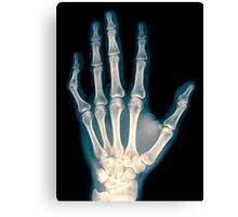 x-ray of wrist, hand and fingers Canvas Print