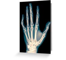 x-ray of wrist, hand and fingers Greeting Card