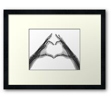 X-ray of hands forming a heart shape Framed Print