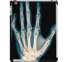 x-ray of wrist, hand and fingers iPad Case/Skin