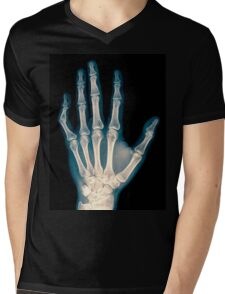 x-ray of wrist, hand and fingers Mens V-Neck T-Shirt
