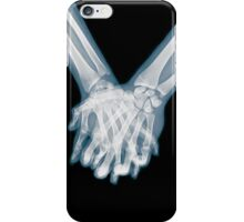 x-ray of a couple Holding Hands iPhone Case/Skin