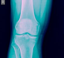 Knee x-ray of a 44 year old male patient front view by PhotoStock-Isra