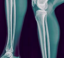 x-ray of the right knee of a 42 year old male  by PhotoStock-Isra