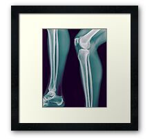 x-ray of the right knee of a 42 year old male  Framed Print