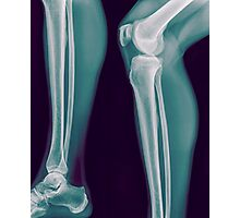 x-ray of the right knee of a 42 year old male  Photographic Print