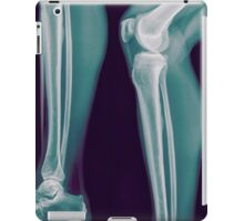 x-ray of the right knee of a 42 year old male  iPad Case/Skin