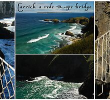 Carrickarede Rope Bridge by ragman