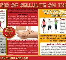 Medi-Spa Cellulite Treatments Don't Work by DianeRichard