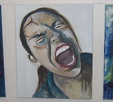 scar face- self portrait series by Teagan Watts