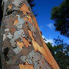 Tree Skin by Miriam Shilling