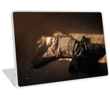 """ Gipples and Loopy Pops "" Laptop Skin"