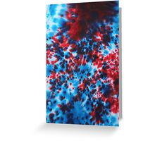 Lots of fun to do !!! Greeting Card