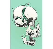 Skull Fracture Photographic Print