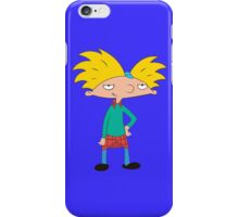 Hey Arnold! iPhone Case/Skin