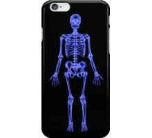 XRAY (Skeleton) iPhone Case iPhone Case/Skin