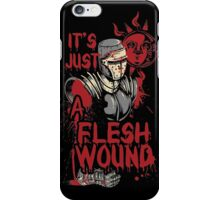 It`s Just a Flesh Wound iPhone Case/Skin