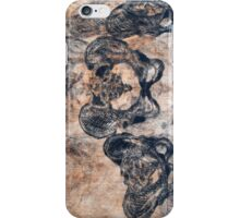 joined at the hip #1 iPhone Case/Skin