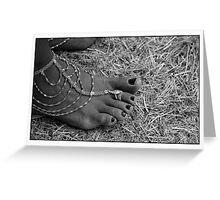 Yvette's foot Greeting Card