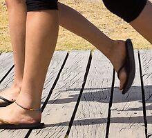 legs on the boardwalk by Anne Scantlebury