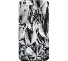 Micro Killers: Cholesterol crystals under a microscope iPhone Case/Skin
