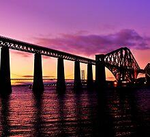 Bridge to Confuse Yanks by Nik Watt