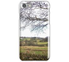 Rolling Hills in Eldwick, UK iPhone Case/Skin