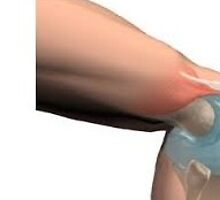 Knee replacement alternatives los angeles by jointsurgerymd