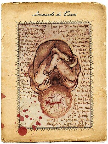 Abortion by buyart