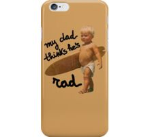 My dad thinks he's rad - Baby surfer iPhone Case/Skin