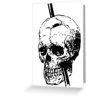 The Skull of Phineas Gage Vintage Illustration Vector Greeting Card