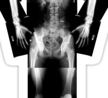 X ray Sticker