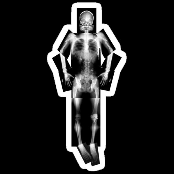 X ray by pelegrin
