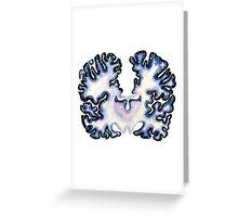 Galaxy Nissl Stain Brain Greeting Card