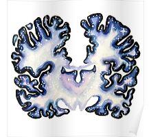 Galaxy Nissl Stain Brain Poster