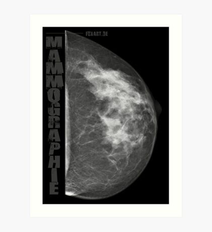 Mammographie - Screening Art Print