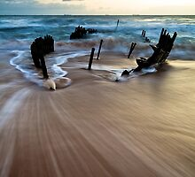 We Found Skeletal Remains (Colour) by Matthew Stewart