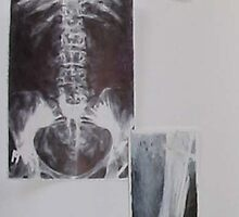 X Ray Studies Complete by Josh Bowe