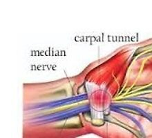 Carpal Tunnel Syndrome | Pima Neurology by pimaneurology