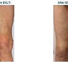 Get Best Treatment for Spider Vein Removal in Toronto at Atlantic Vein Clinics by Bellaswan