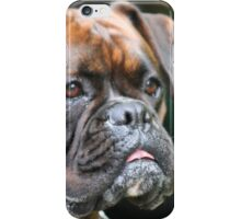 Brindle boxer head iPhone Case/Skin