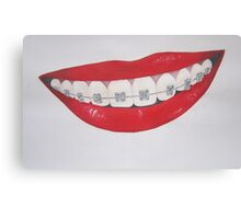 lips and retainers Canvas Print